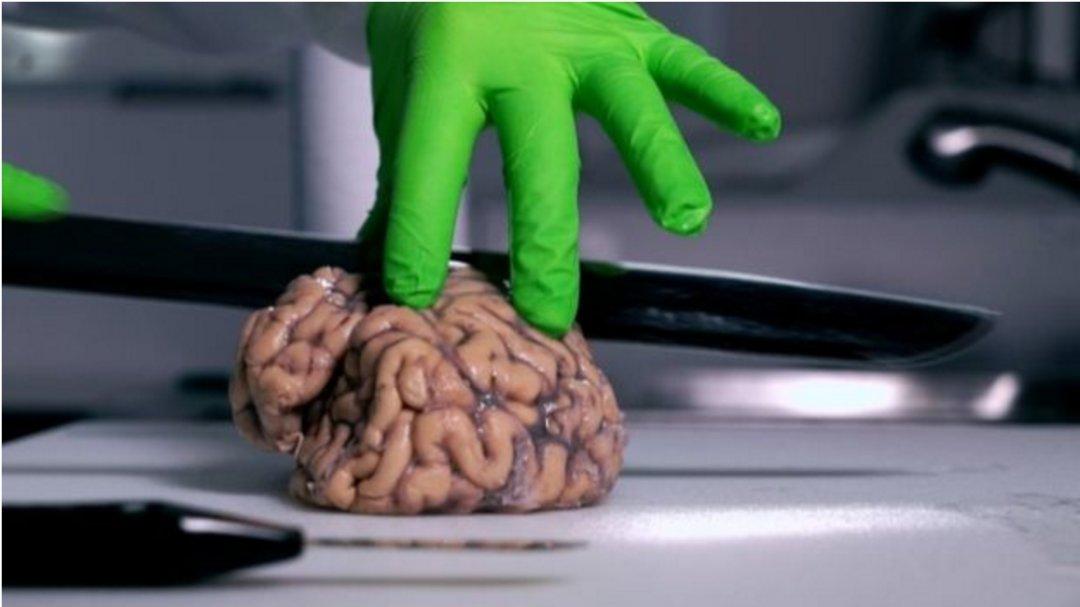 """在英国,不少人愿意死后把大脑存入特殊的""""银行""""_文化_好奇心日报"""