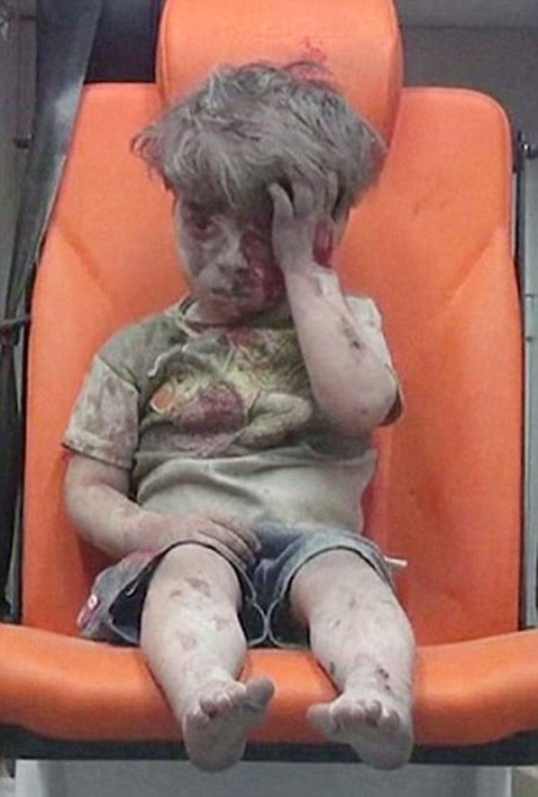 「这世界」他今年 5 岁,经历空袭、满脸是血、不会哭泣_文化_好奇心日报