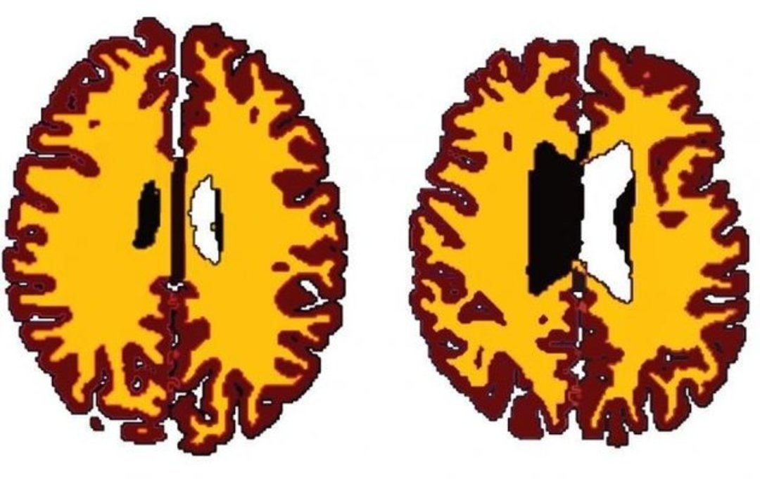肥胖会使你的大脑看起来老十岁,不过,不一定变笨啦_文化_好奇心日报